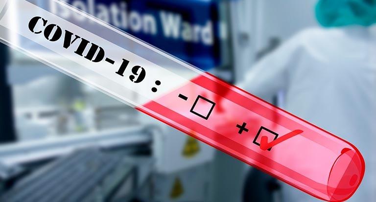 Plena Inclusión Madrid exige la realización de test de coronavirus